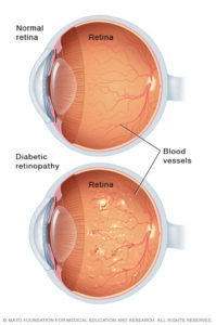 Illustration comparing good eye to eye with diabetic retinopathy